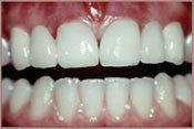 dental bridges after