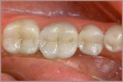Tooth Colored Fillings After