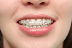 benefits of traditional braces