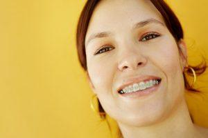 braces FAQs